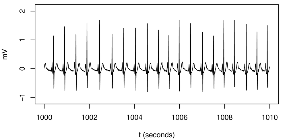 Normal heartbeat pattern recorded in an EKG. The spikes that had, in isolation, appeared to be anomalies relative to the horizontal curve are actually a regular and expected part of this normal pattern.