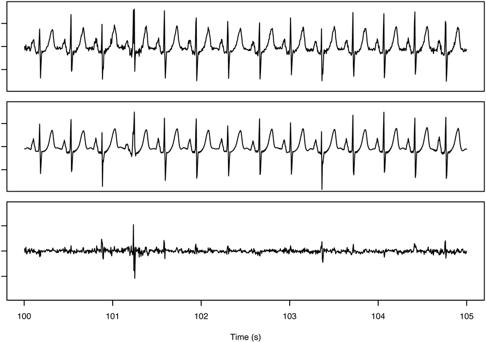 Reconstruction for a heart signal displaying anomalous behavior. Top trace is the original EKG signal. The bottom trace shows the reconstruction error that is computed by subtracting the reconstructed signal (middle trace) from the original. Notice the spike in the error at just past 101 seconds. That error spike indicates that the reconstruction shown in the middle panel was unable to reproduce that section of the original signal shown at the top.