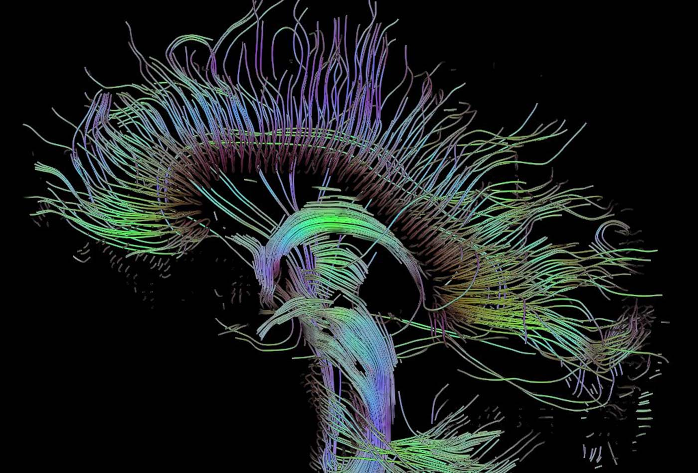 Visualization of a DTI measurement of a human brain.