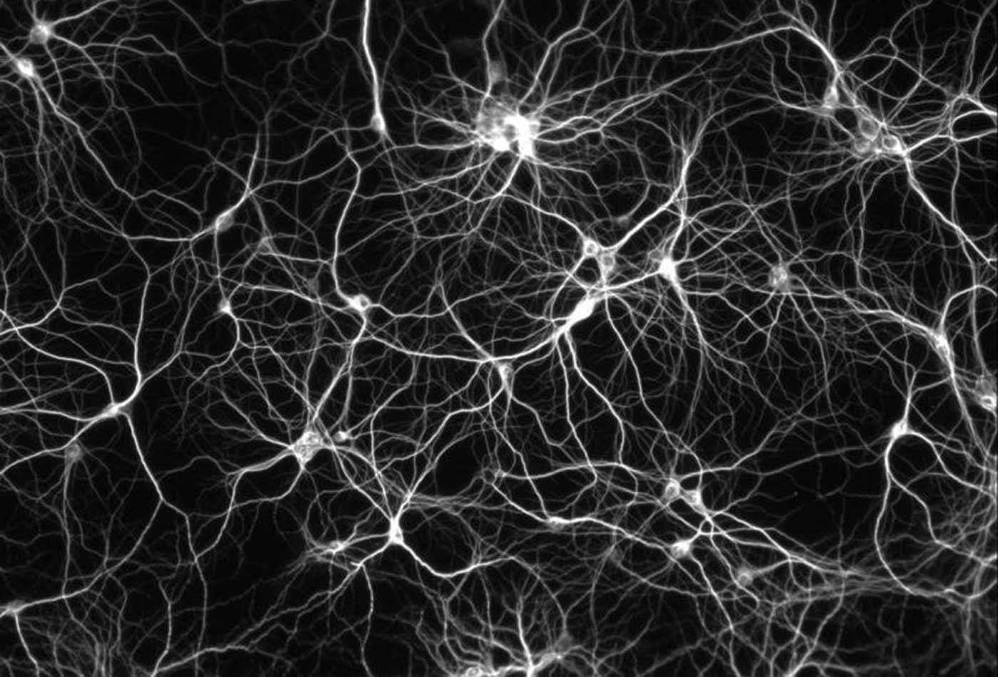 Neural network.
