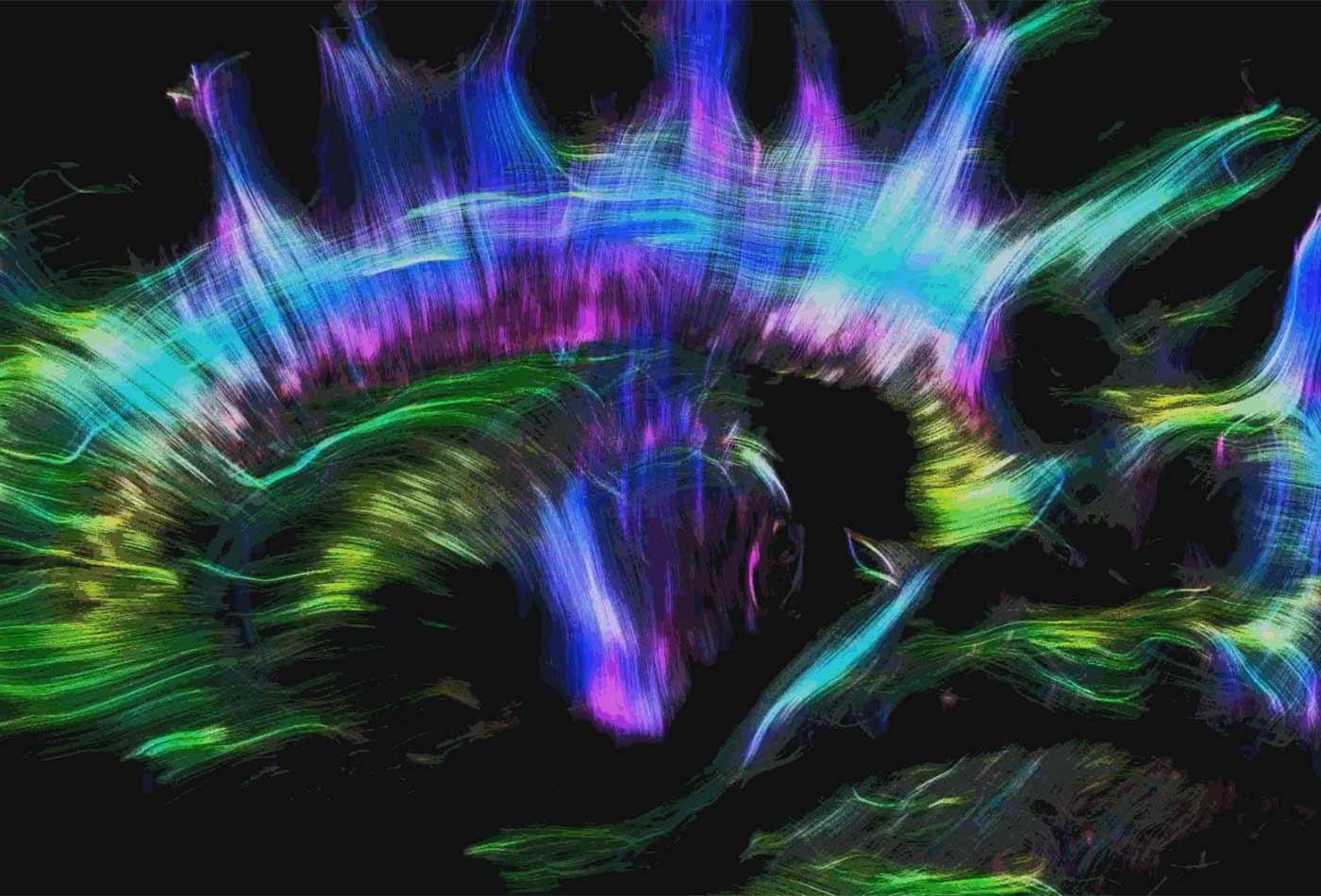 Tractography.